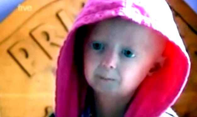 Progeria - Pictures, Life Expectancy, Facts, Causes ...  Progeria - Pict...
