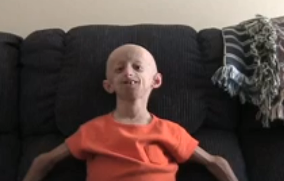 Progeria - Pictures, Life Expectancy, Facts, Causes ...