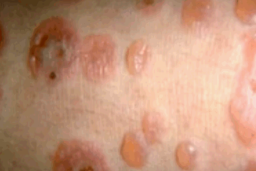 Signs Your Child Has Been Infected With Herpes ...