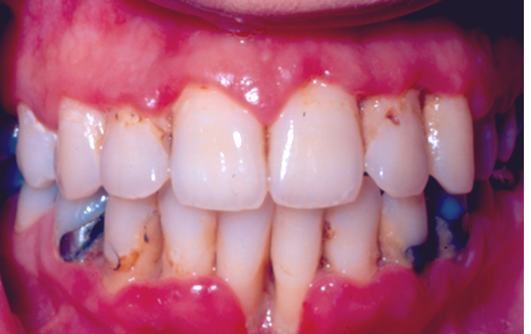 trench mouth - symptoms, causes, pictures, treatment, Skeleton