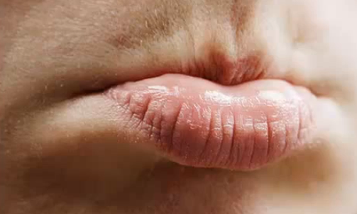First Outbreak Symptoms of Mouth Herpes - livestrong.com