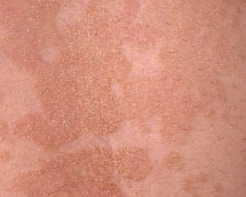 tinea versicolor pictures symptoms causes treatment